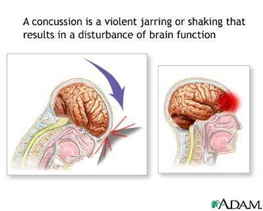learnet living education and resources network by the brain injurya concussion is a traumatic brain injury